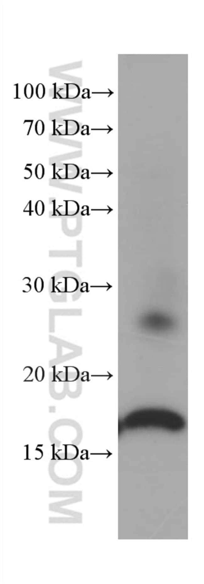 Lysozyme Mouse anti-Human, Mouse, Porcine, Rat, Clone: 2G5A8, Proteintech 20 μL; Unconjugated Ver productos