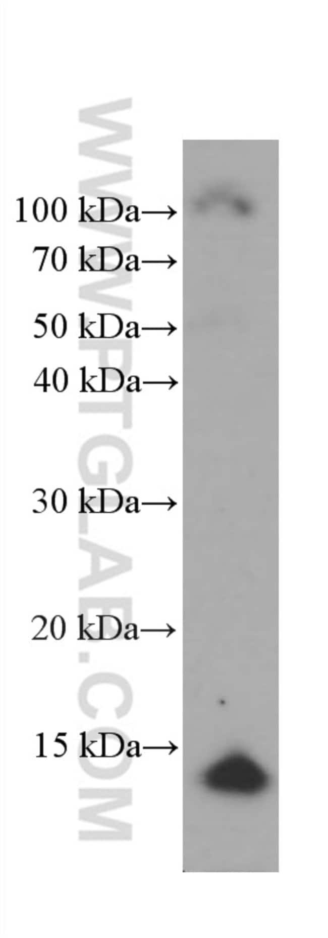CRABP2 Mouse anti-Human, Mouse, Porcine, Rat, Clone: 1A5F3, Proteintech 150 μL; Unconjugated Ver productos