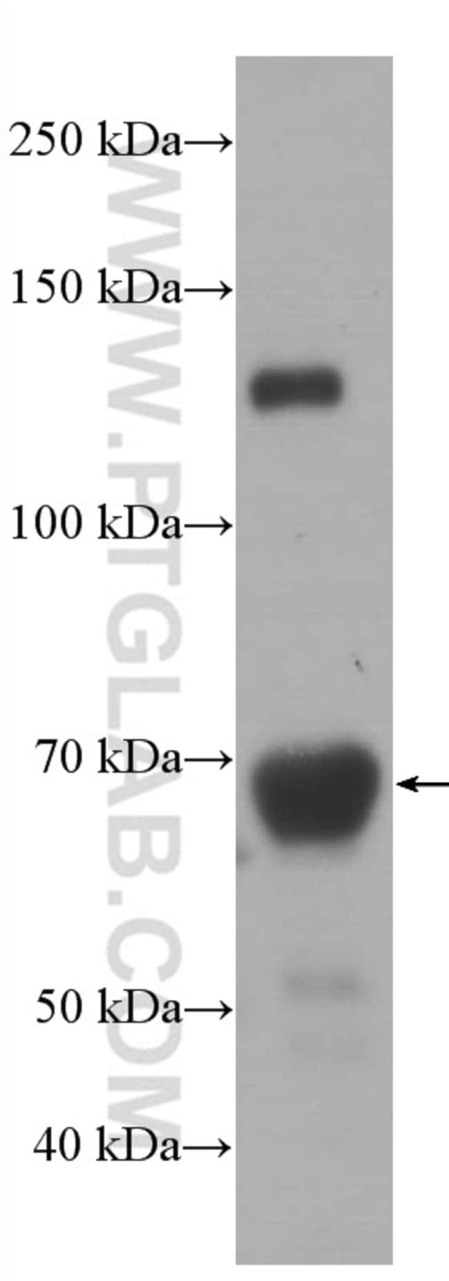 Hemopexin Mouse anti-Human, Porcine, Rat, Clone: 3A9D6, Proteintech 150 μL; Unconjugated Ver productos