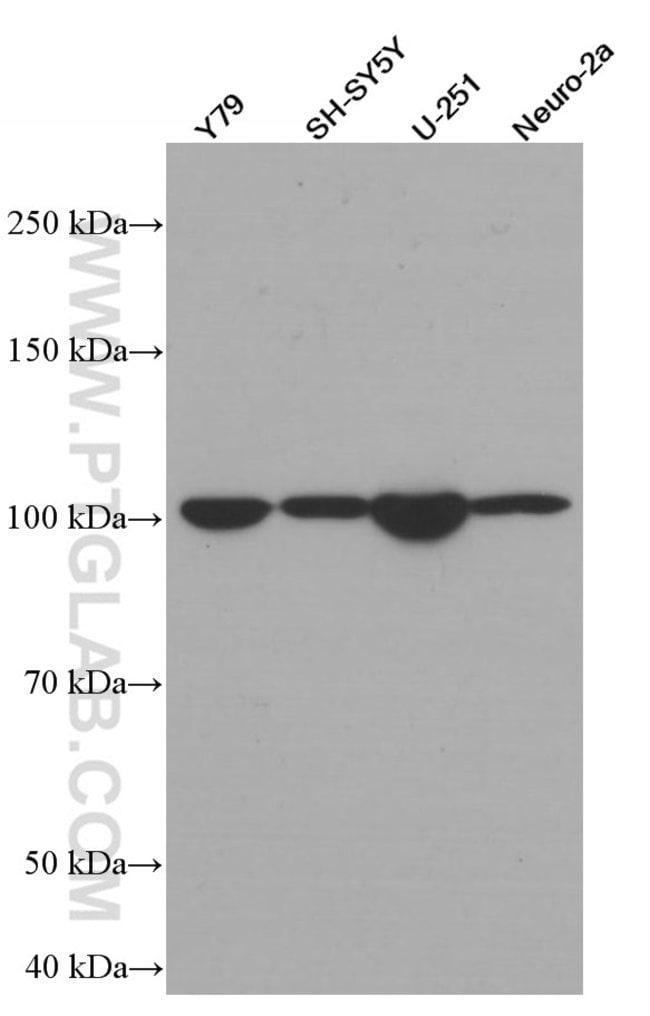 TAU Mouse anti-Human, Mouse, Porcine, Rat, Clone: 1E9A8, Proteintech 150 μL; Unconjugated Ver productos