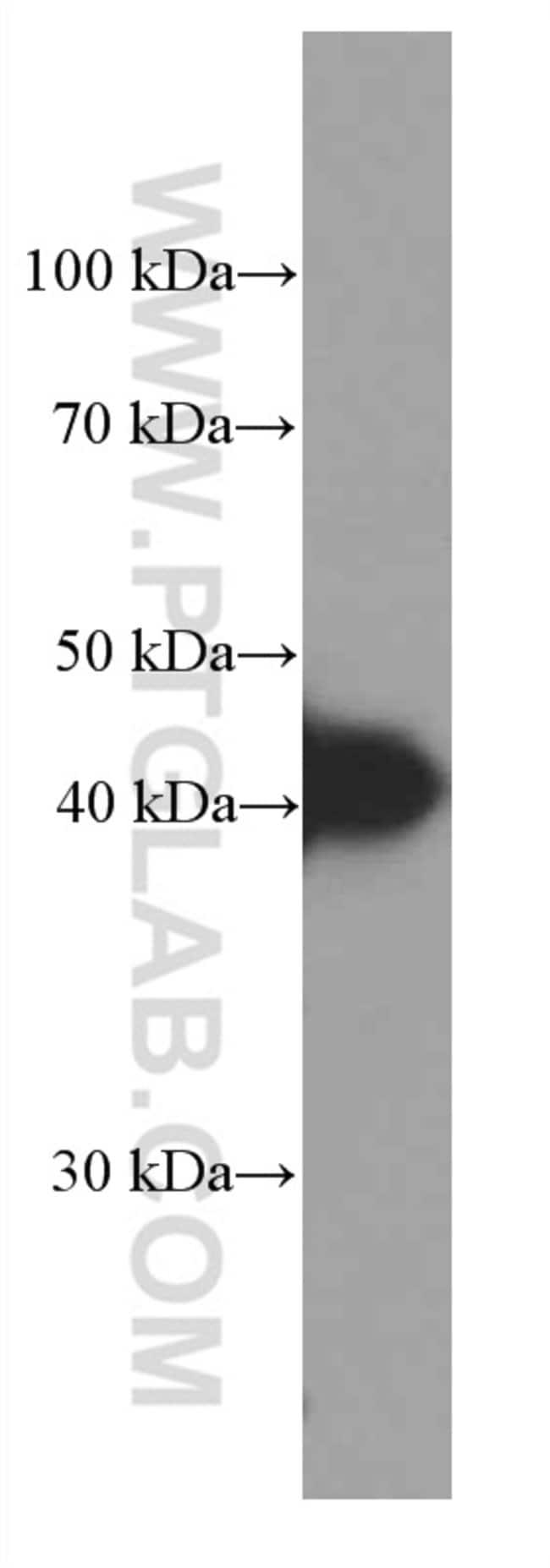 HLA-E Mouse anti-Human, Clone: 1A4G3, Proteintech 150 μL; Unconjugated Ver productos