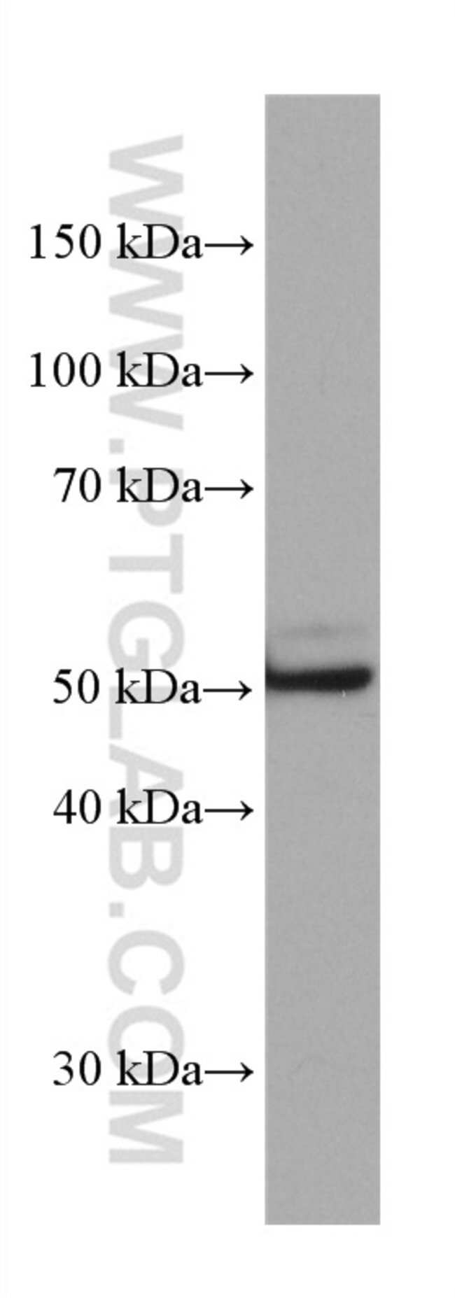 ETS1 Mouse anti-Human, Rat, Clone: 4F2D4, Proteintech 150 μL; Unconjugated Ver productos