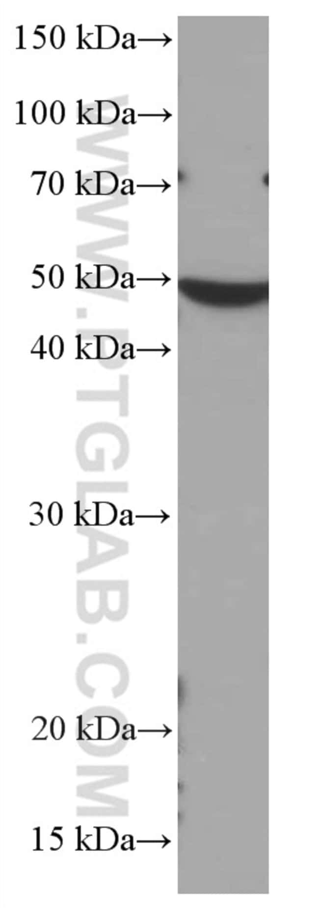 CHST4 Mouse anti-Human, Clone: 1E1A4, Proteintech 150 μL; Unconjugated Ver productos