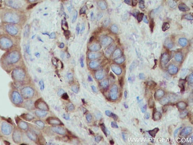 ACTN4 Mouse anti-Human, Mouse, Rat, Clone: 1E12B8, Proteintech 150 μL; Unconjugated Ver productos