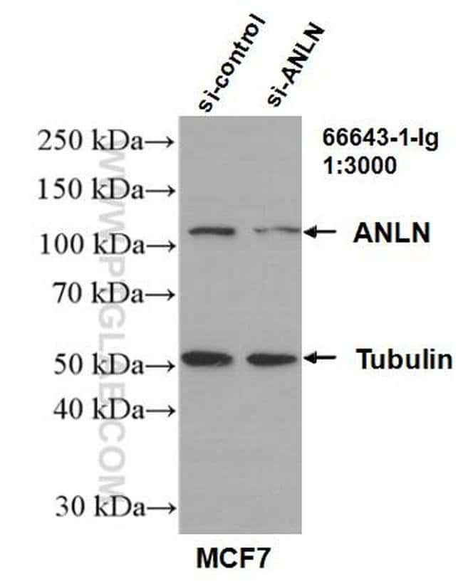 ANLN Mouse anti-Human, Clone: 1B4A8, Proteintech 150 μL; Unconjugated Ver productos
