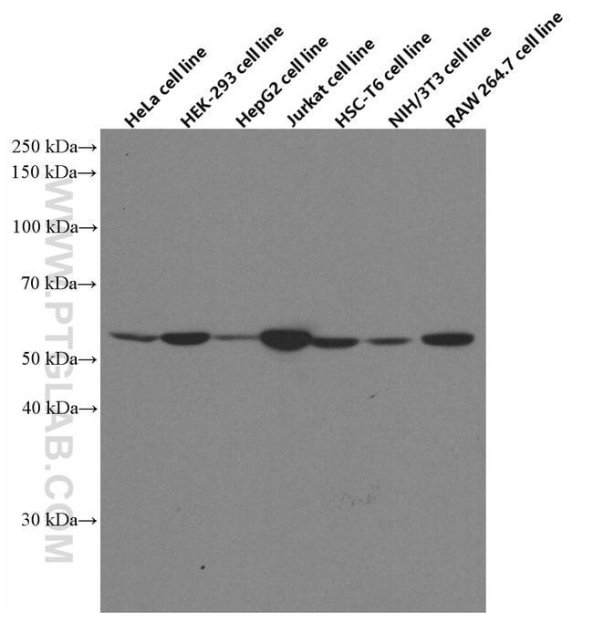STK4 Mouse anti-Human, Mouse, Rat, Clone: 2G11C1, Proteintech 150 μL; Unconjugated Ver productos