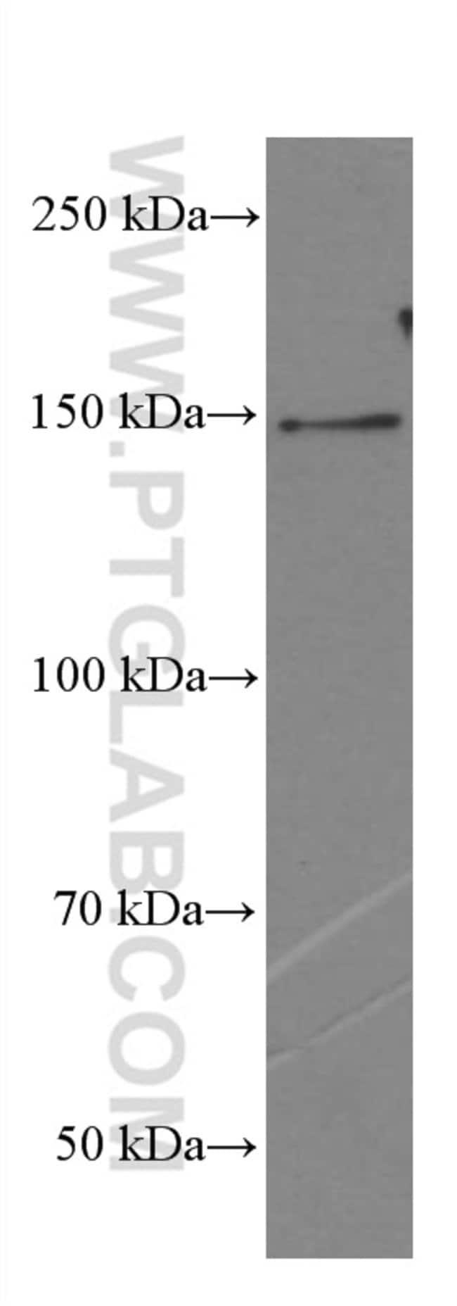 PLCB3 Mouse anti-Human, Mouse, Rat, Clone: 1B8B3, Proteintech 150 μL; Unconjugated Ver productos