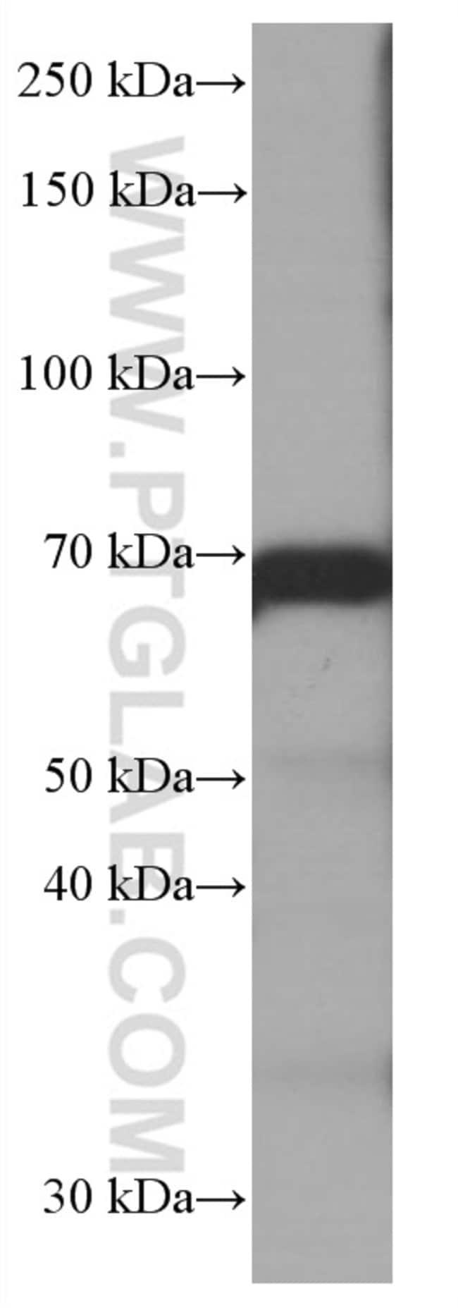 CALD1 Mouse anti-Human, Mouse, Rat, Clone: 1E1C11, Proteintech 150 μL; Unconjugated Ver productos