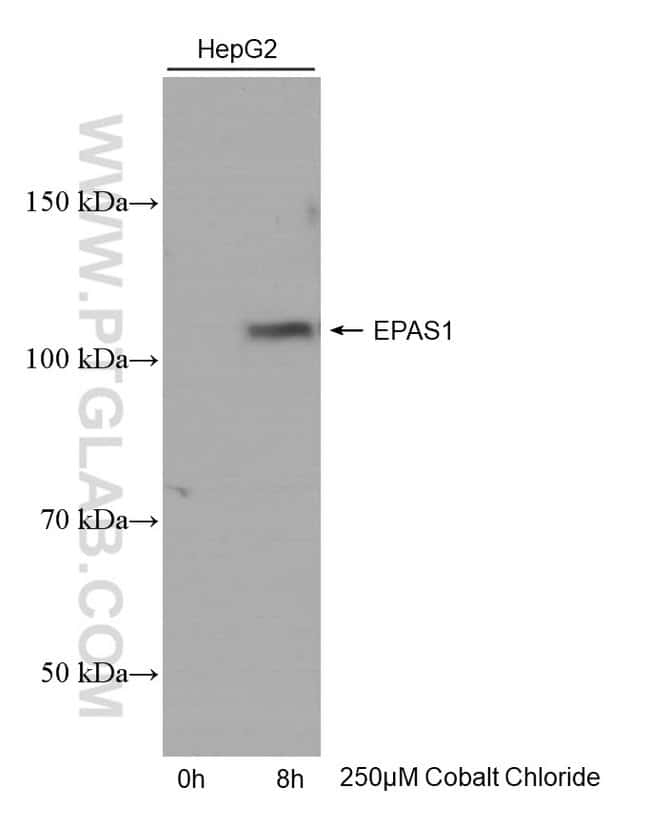 EPAS1 Mouse anti-Human, Clone: 2F6B12, Proteintech 150 μL; Unconjugated Ver productos