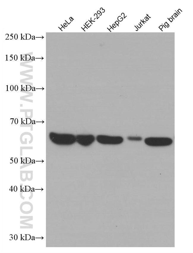 Catalase Mouse anti-Human, Mouse, Porcine, Rat, Clone: 1F8D7, Proteintech 150 μL; Unconjugated Ver productos
