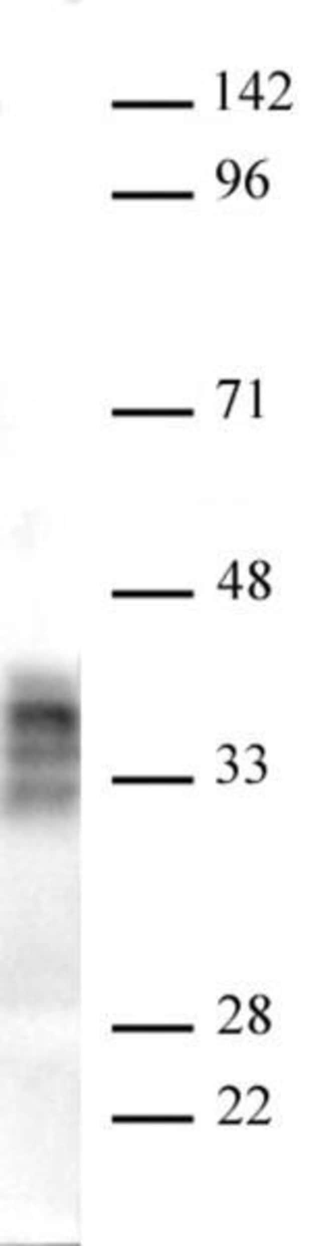 Pim2 Mouse anti-Human, Active Motif:Antibodies:Primary Antibodies