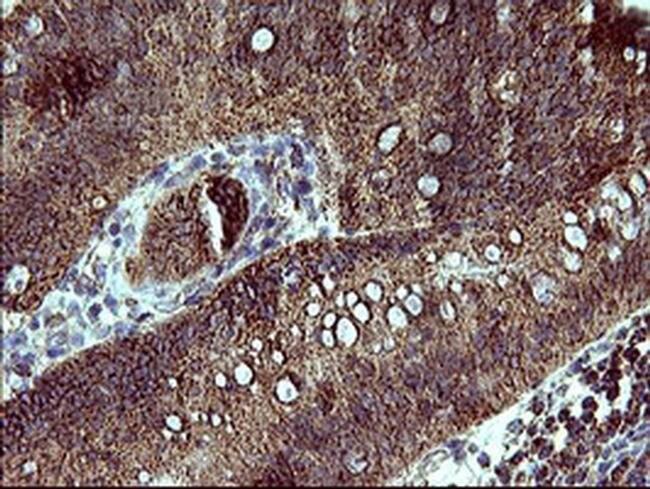 ACAA2 Mouse anti-Human, Clone: OTI3H9, liquid, TrueMAB  100 µL; Unconjugated