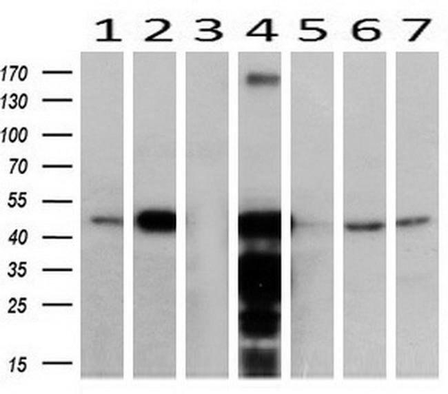 ACAA2 Mouse anti-Canine, Human, Mouse, Rat, Clone: OTI1C10, liquid, TrueMAB