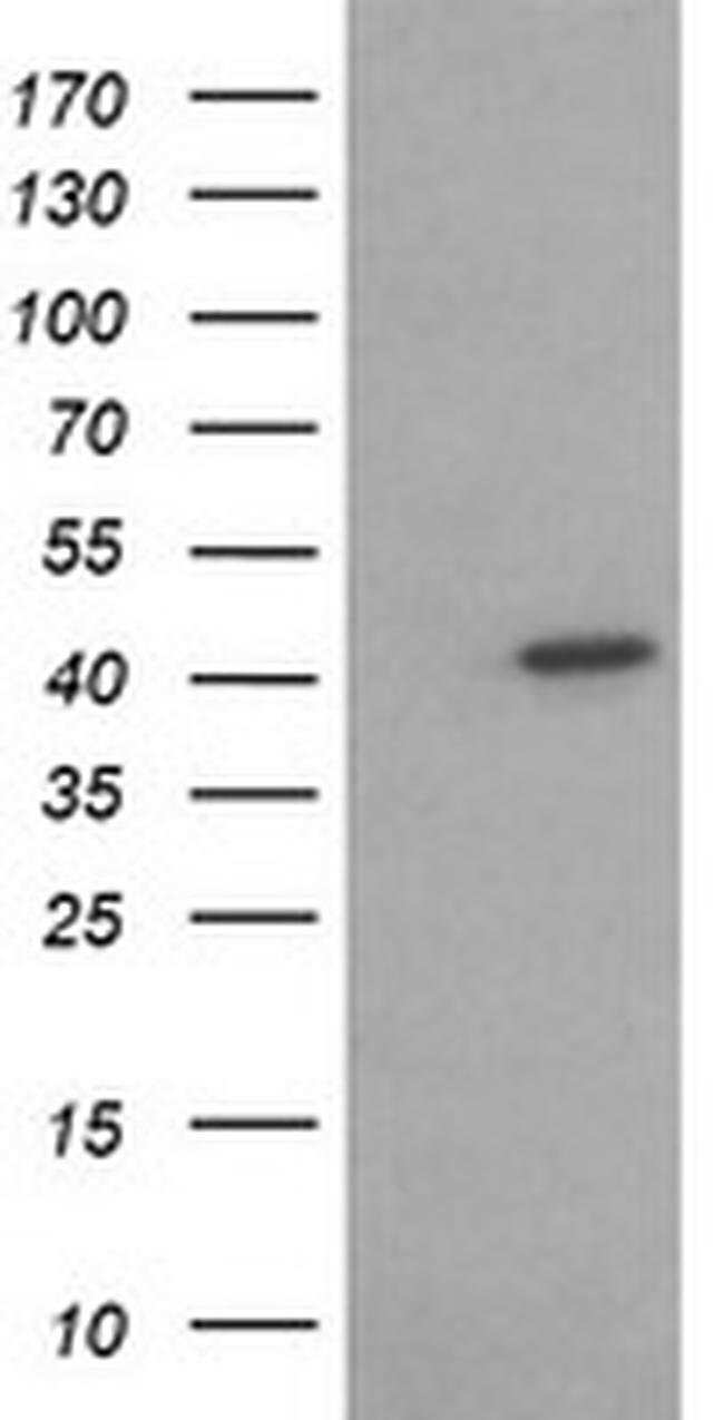 ACAA2 Mouse anti-Canine, Human, Mouse, Rat, Clone: OTI2F6, liquid, TrueMAB