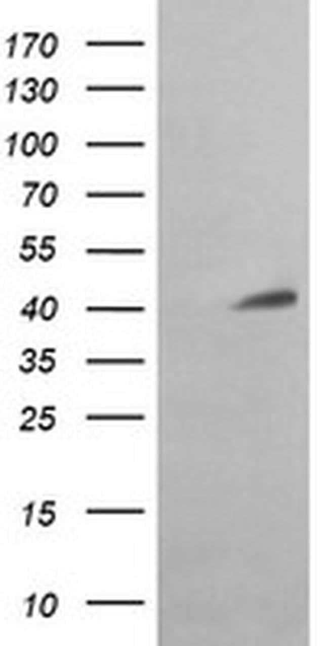 ACAA2 Mouse anti-Canine, Human, Mouse, Rat, Clone: OTI2G6, liquid, TrueMAB