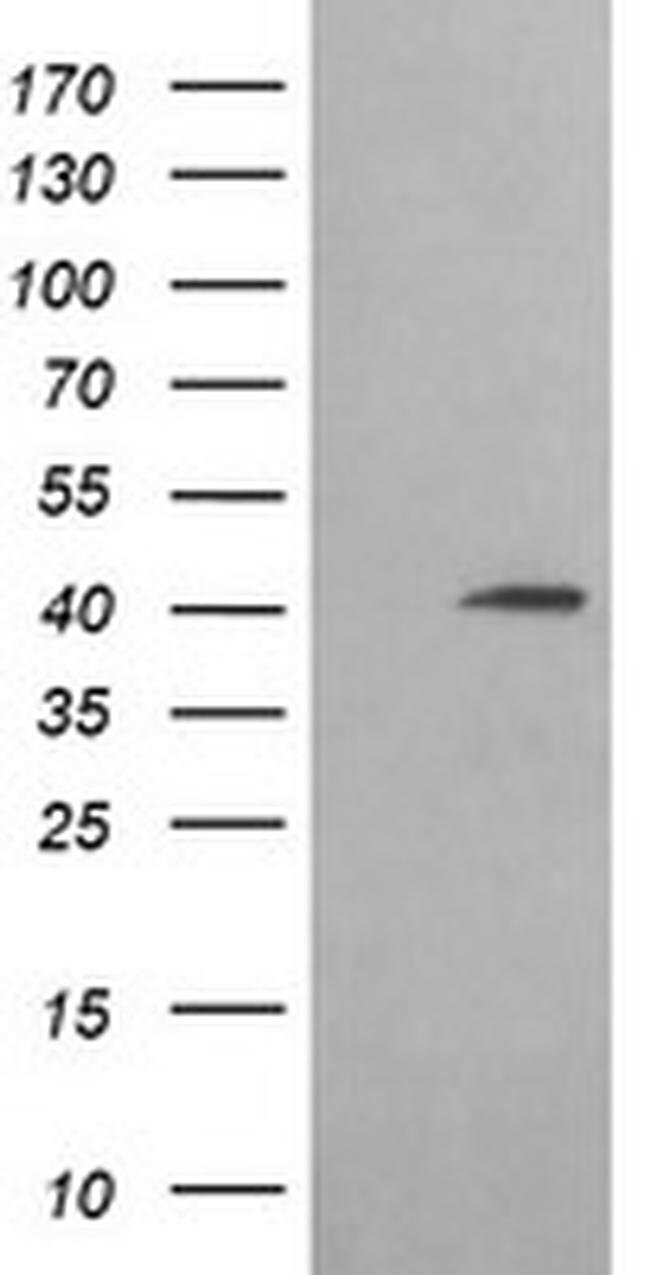ACAA2 Mouse anti-Canine, Human, Mouse, Rat, Clone: OTI3C6, liquid, TrueMAB