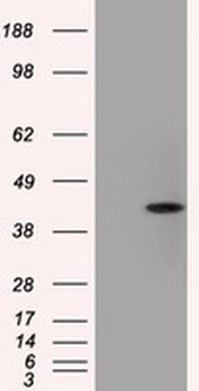ACAT2 Mouse anti-Human, Clone: OTI3A11, liquid, TrueMAB  100 µL; Unconjugated