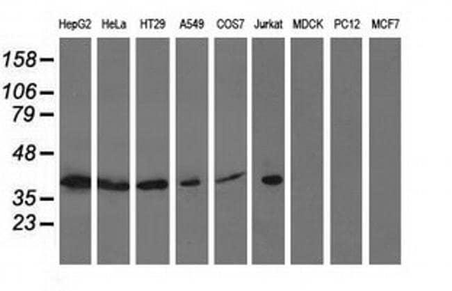 ACAT2 Mouse anti-Human, Clone: OTI3A8, liquid, TrueMAB  100 µL; Unconjugated