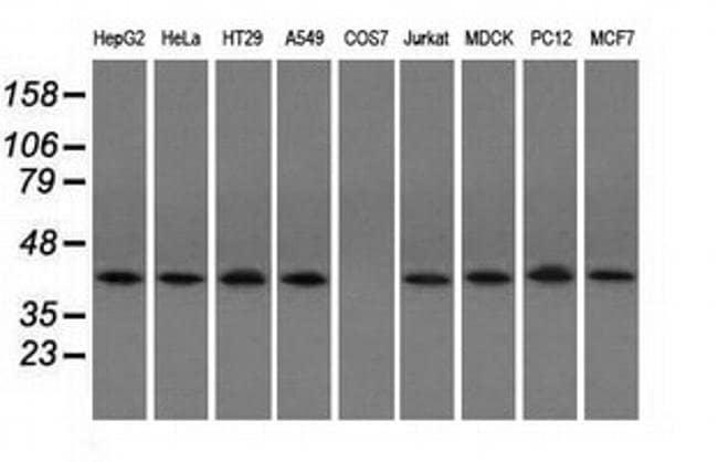 ACAT2 Mouse anti-Canine, Human, Rat, Clone: OTI3C9, liquid, TrueMAB  100