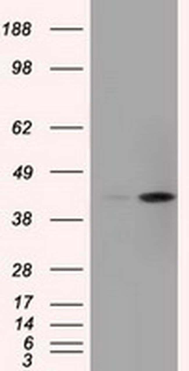 ACAT2 Mouse anti-Canine, Human, Rat, Clone: OTI5A2, liquid, TrueMAB  100
