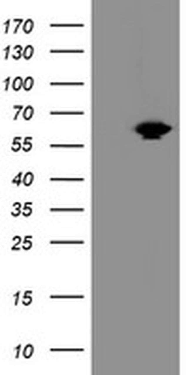 ACBD3 Mouse anti-Human, Clone: OTI2B12, liquid, TrueMAB  100 µL; Unconjugated