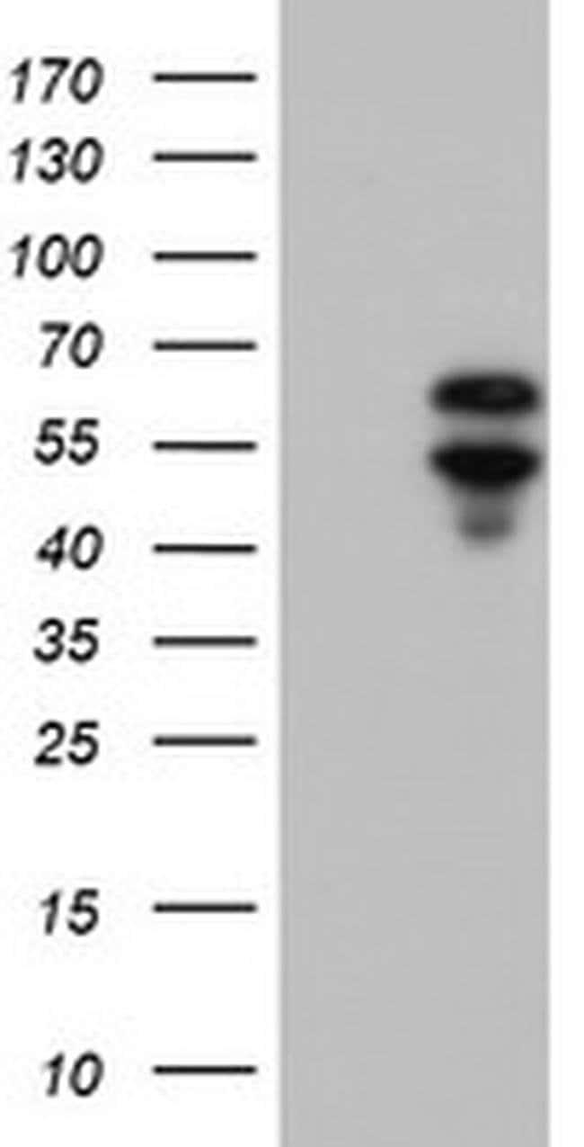 ACD Mouse anti-Human, Clone: OTI1C8, liquid, TrueMAB  100 µL; Unconjugated