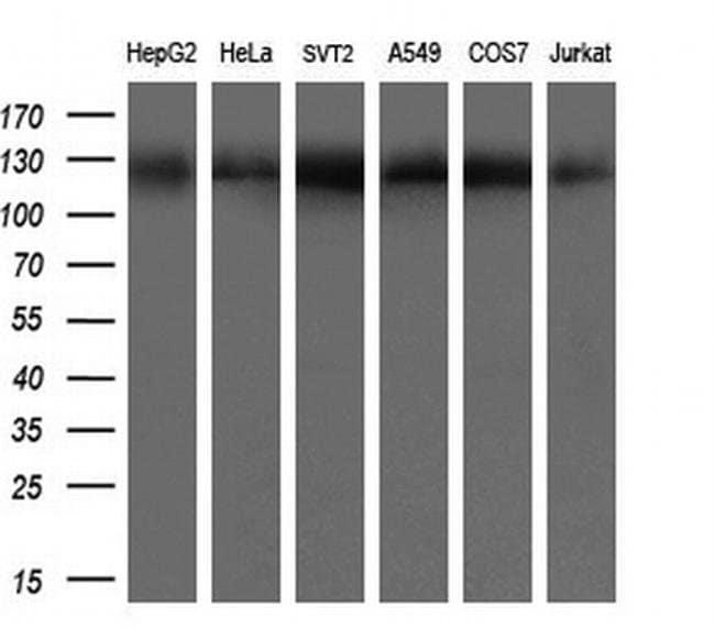 ACLY Mouse anti-Human, Clone: OTI3G8, liquid, TrueMAB  100 µL; Unconjugated