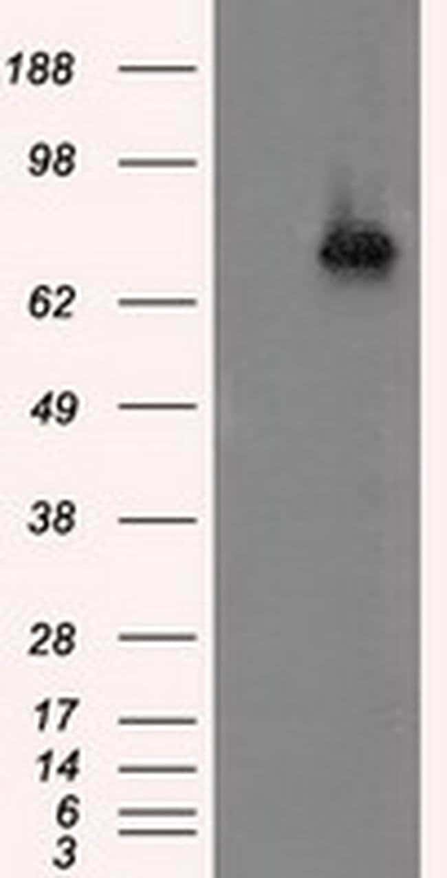 ACSBG1 Mouse anti-Human, Clone: OTI2B6, liquid, TrueMAB  100 µL; Unconjugated