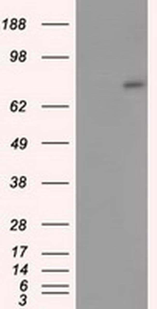 ACSBG1 Mouse anti-Human, Clone: OTI1D8, liquid, TrueMAB  100 µL; Unconjugated