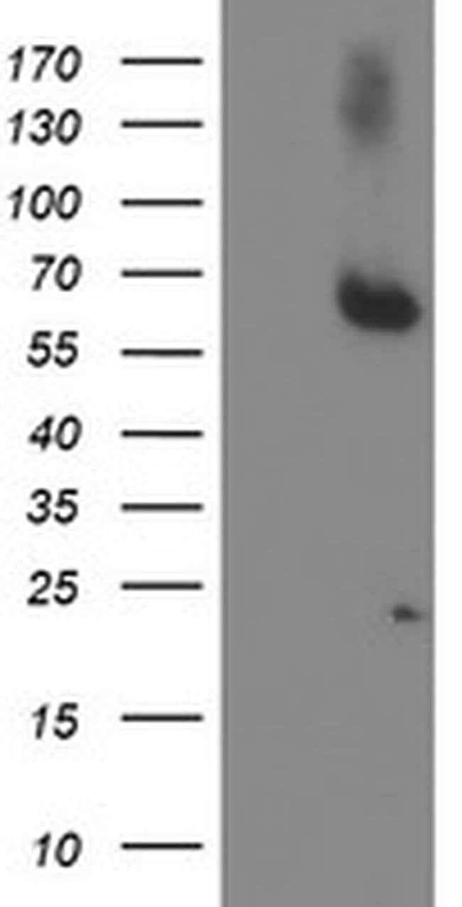 ACSM5 Mouse anti-Human, Clone: OTI5D5, liquid, TrueMAB  100 µL; Unconjugated