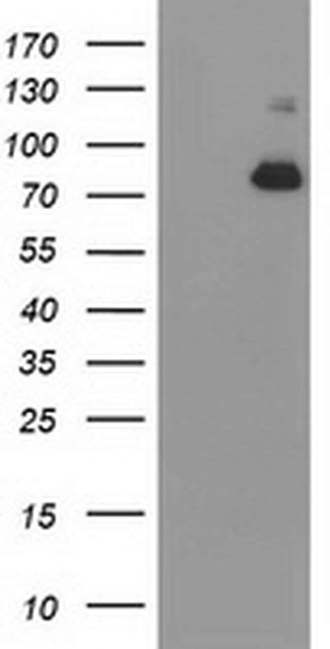 ACSS2 Mouse anti-Human, Clone: OTI3A8, liquid, TrueMAB  100 µL; Unconjugated