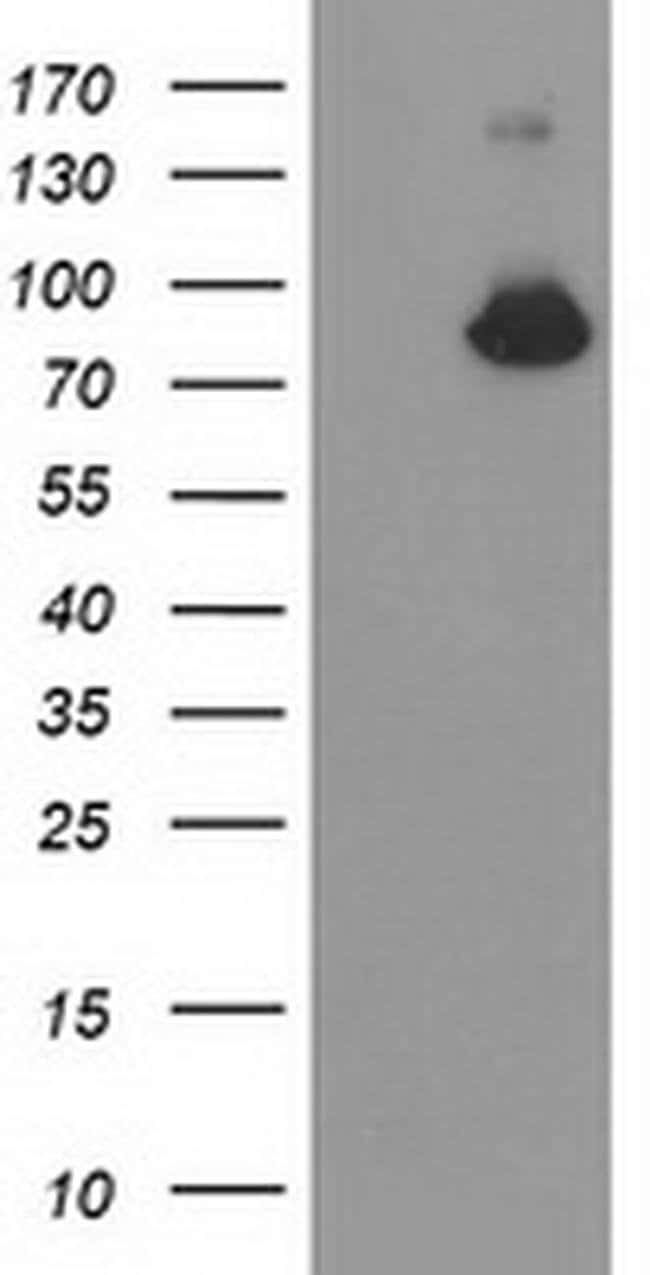 ACSS2 Mouse anti-Human, Clone: OTI2E10, liquid, TrueMAB  100 µL; Unconjugated