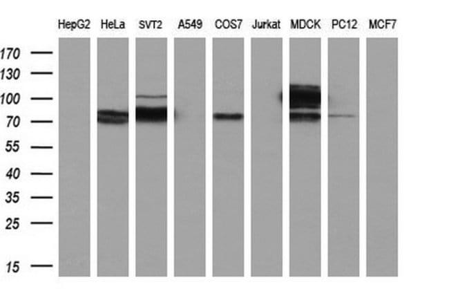 ACSS2 Mouse anti-Human, Clone: OTI3H4, liquid, TrueMAB  100 µL; Unconjugated