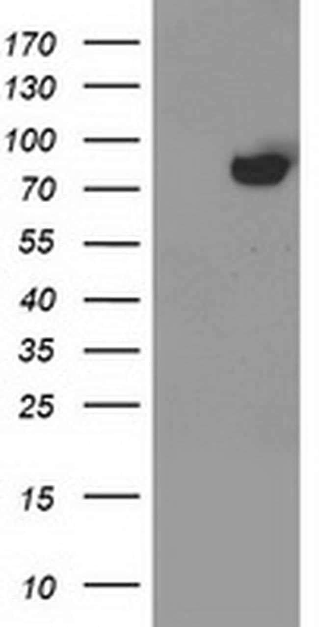 ACSS2 Mouse anti-Human, Clone: OTI2C6, liquid, TrueMAB  100 µL; Unconjugated