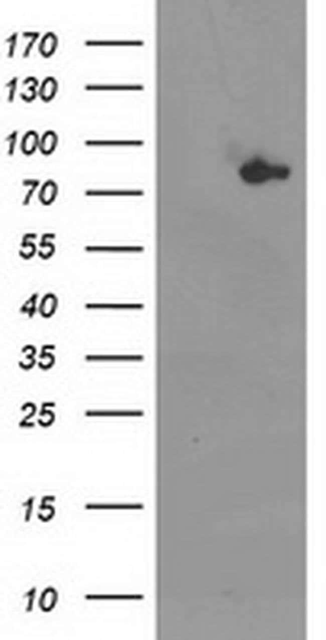 ACSS2 Mouse anti-Human, Clone: OTI3B12, liquid, TrueMAB  100 µL; Unconjugated