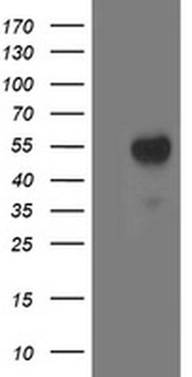 ACY1 Mouse anti-Canine, Human, Mouse, Rat, Clone: OTI1A12, liquid, TrueMAB