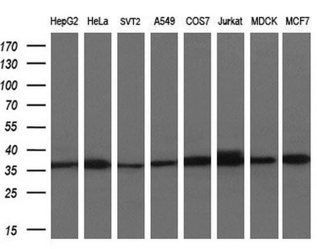 ACY3 Mouse anti-Human, Clone: OTI3A1, liquid, TrueMAB  100 µL; Unconjugated