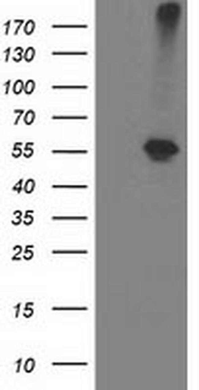 ADH1B Mouse anti-Human, Clone: OTI1H7, liquid, TrueMAB  100 µL; Unconjugated