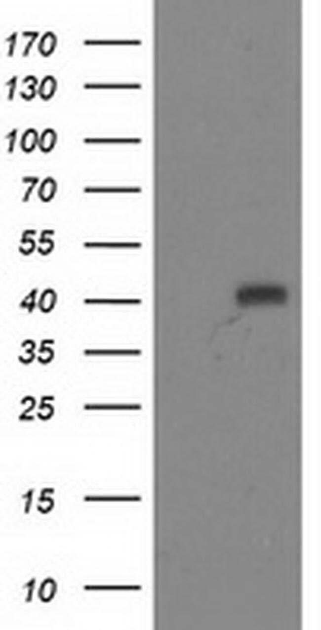 ADH1B Mouse anti-Human, Clone: OTI3C12, liquid, TrueMAB  100 µL; Unconjugated