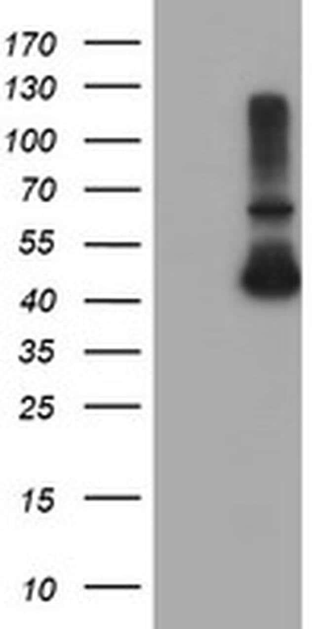 ADH7 Mouse anti-Human, Clone: OTI2C3, liquid, TrueMAB  100 µL; Unconjugated
