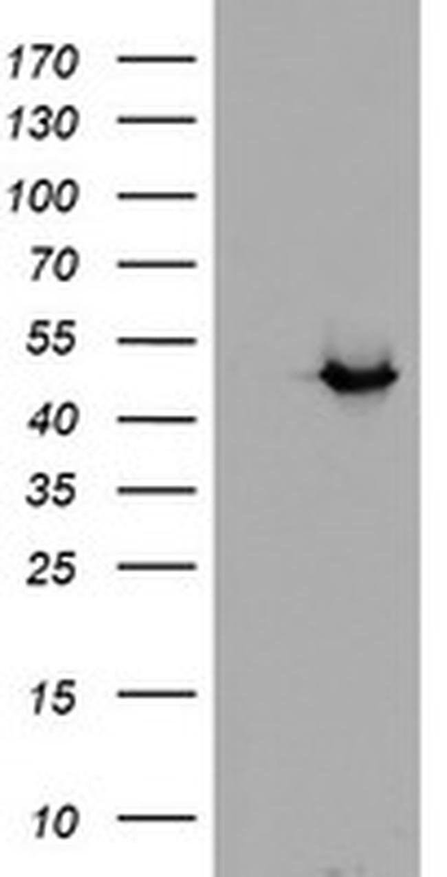 ADH7 Mouse anti-Human, Clone: OTI2D11, liquid, TrueMAB  100 µL; Unconjugated
