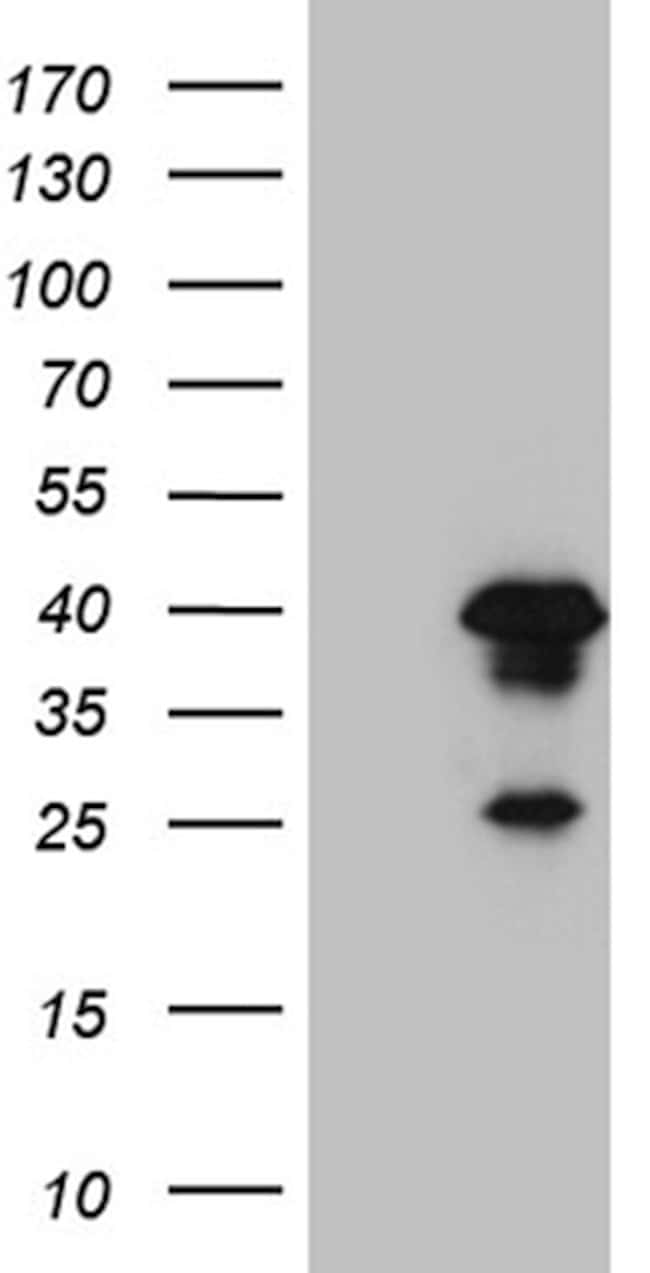 AEBP2 Mouse anti-Human, Clone: OTI10F3, lyophilized, TrueMAB  100 µg;