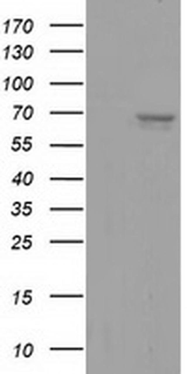 AFP Mouse anti-Human, Clone: OTI2A6, liquid, TrueMAB  100 µL; Unconjugated
