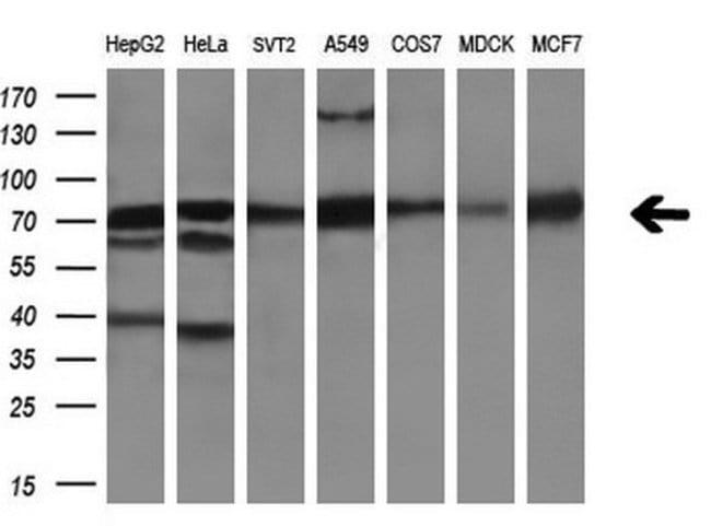AFP Mouse anti-Human, Clone: OTI2E2, liquid, TrueMAB  100 µL; Unconjugated