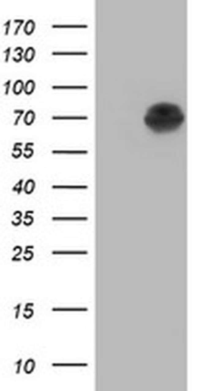 AFP Mouse anti-Human, Clone: OTI3B7, liquid, TrueMAB  100 µL; Unconjugated