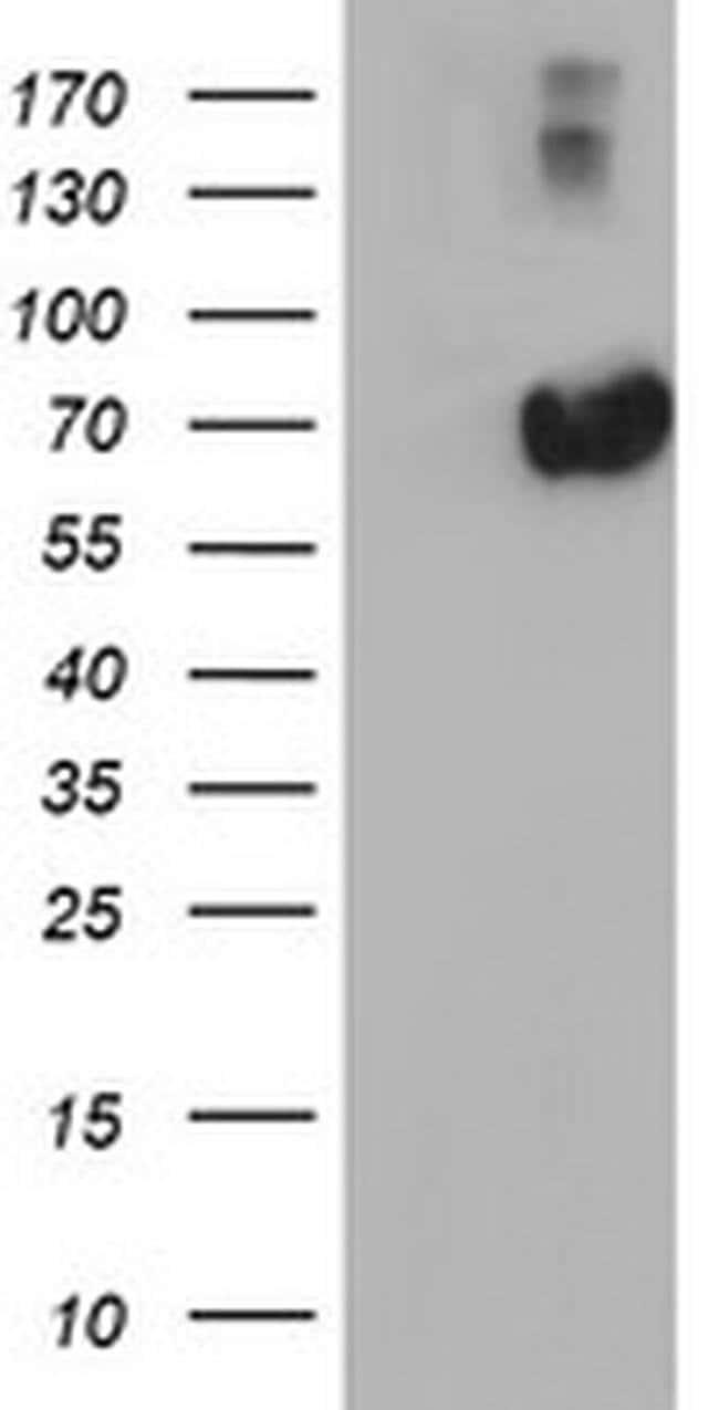 AFP Mouse anti-Human, Clone: OTI2H7, liquid, TrueMAB  100 µL; Unconjugated