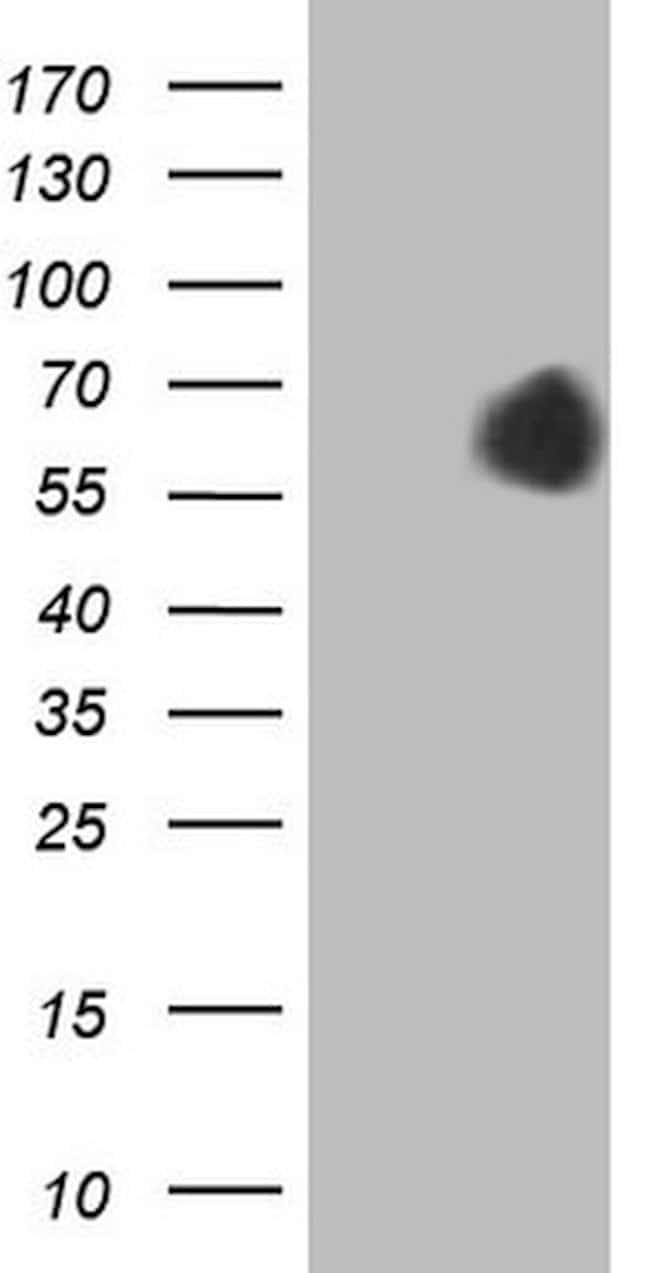 AFP Mouse anti-Human, Clone: OTI4D8, lyophilized, TrueMAB  100 µg;