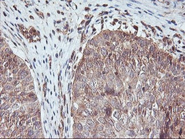 AGPAT5 Mouse anti-Human, Clone: OTI1D4, liquid, TrueMAB  100 µL; Unconjugated