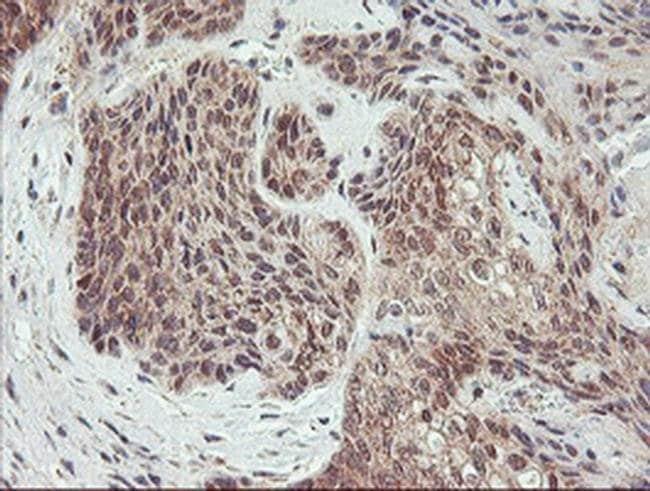 AGPAT5 Mouse anti-Human, Clone: OTI2C4, liquid, TrueMAB  100 µL; Unconjugated