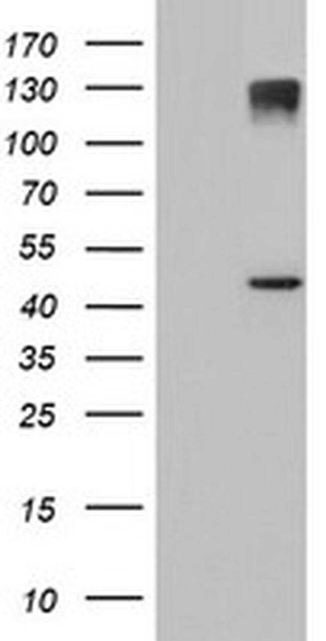 AGPAT5 Mouse anti-Human, Clone: OTI1H10, liquid, TrueMAB  100 µL;